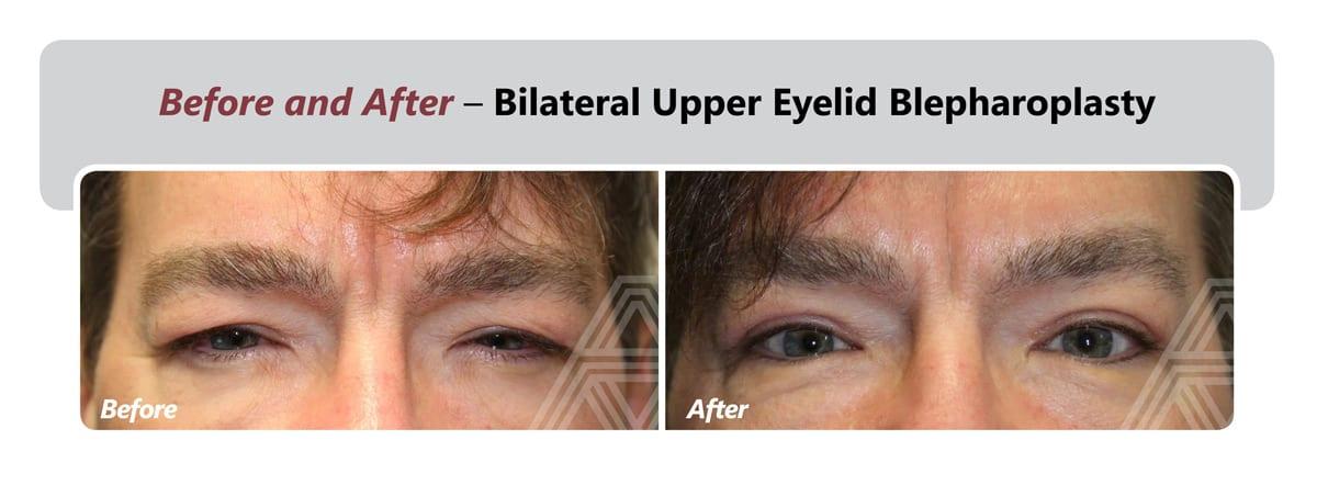 Eyelid Lift (Blepharoplasty) | Triad Eye Institute