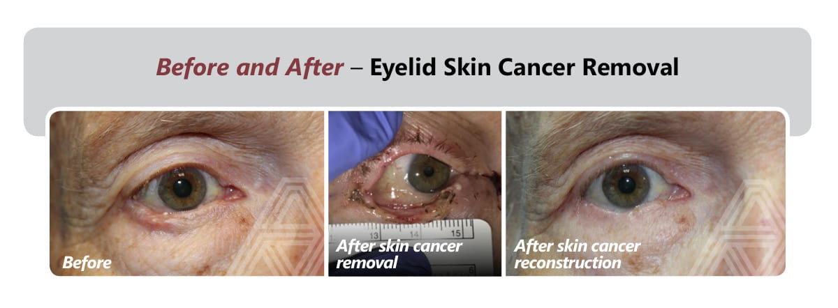 Eyelid Skin Cancer Removal 2