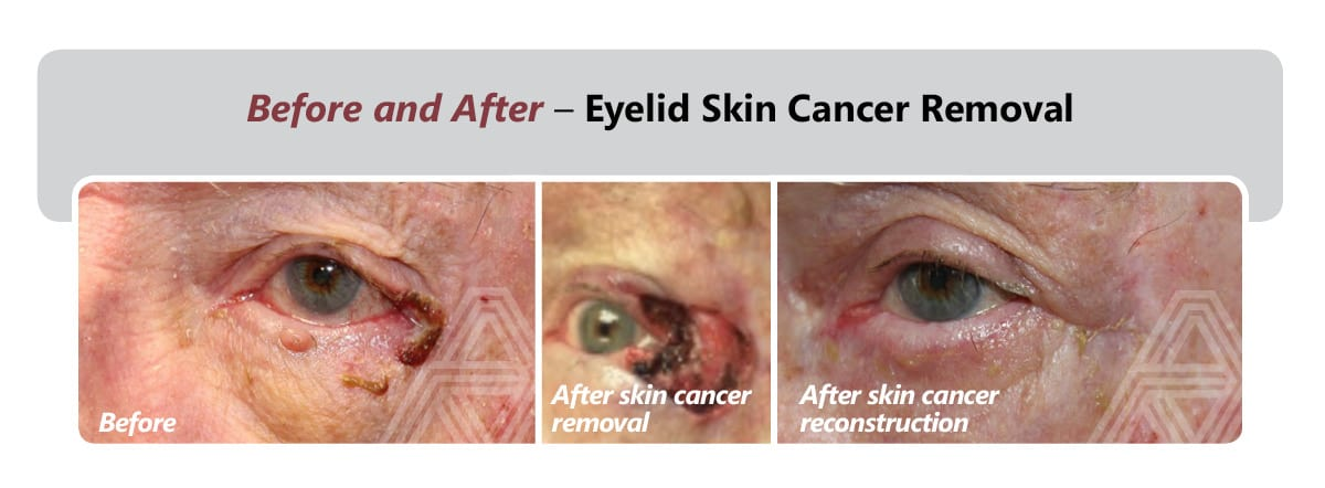Eyelid Skin Cancer Removal