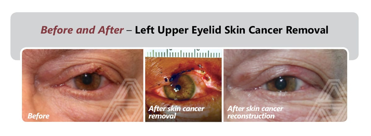 Left Upper Eyelid Skin Cancer Removal