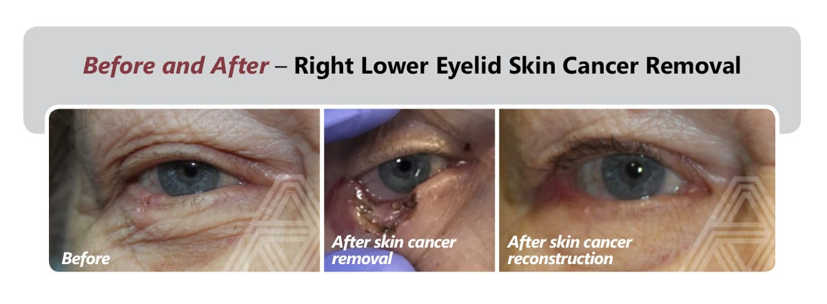 Right Lower Eyelid Skin Cancer Removal