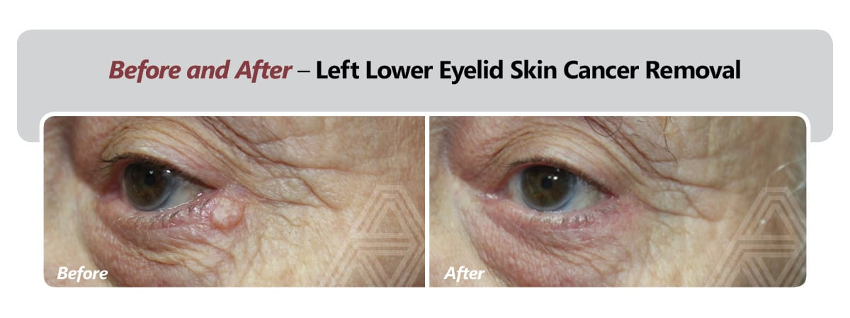 Left Lower Eyelid Skin Cancer Removal