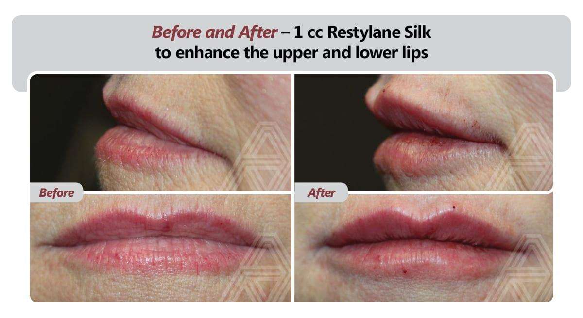 Restylane®, Botox®, Dysport® & Juvederm® | Triad Eye Institute